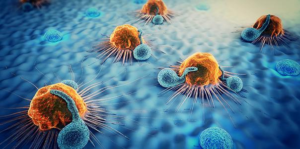 Hyperthermie Anwendungsmöglichkeiten bei Krebserkrankungen – Hyperthermie Stuttgart