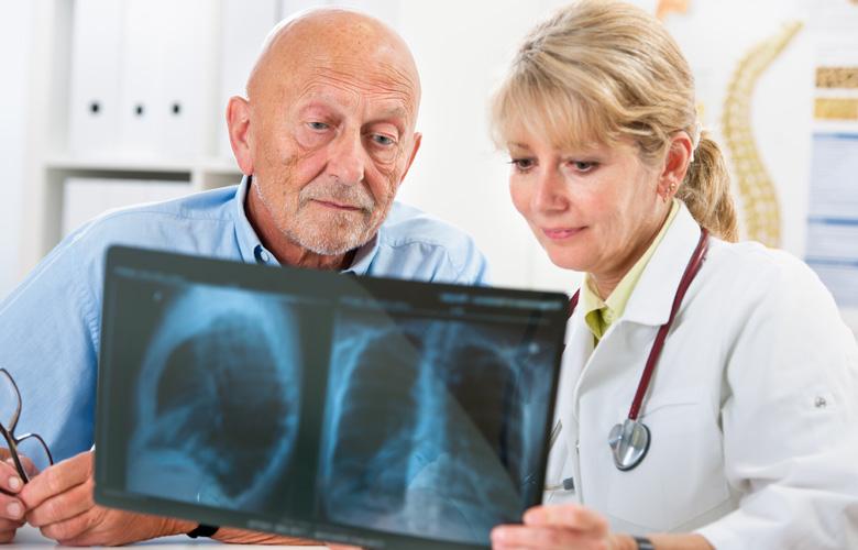 Hyperthermie bei Lungenkrebs Beratung